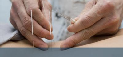 Acupuncture in Oakville